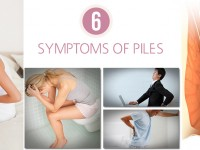 Do You Recognize The 6 Symptoms of Piles?