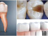 What is the Need for a Root Canal Treatment?