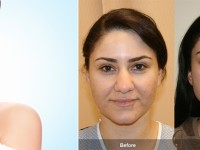 Worried about Nose Shape? Go for Rhinoplasty!