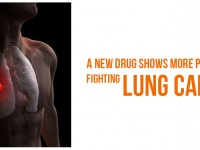 A New Drug shows more Promise in Fighting Lung Cancer