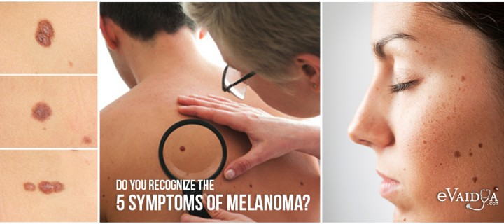 Do you recognize the 5 Symptoms of Melanoma?
