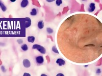 Leukemia: Causes and Treatment