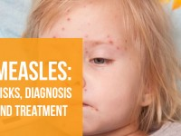 Measles: Risks, Diagnosis and Treatment