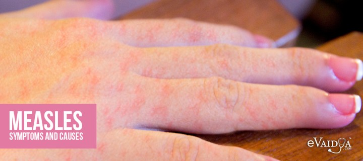 Measles: Symptoms and Causes
