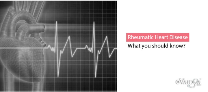 Rheumatic Heart Disease: What you should know?