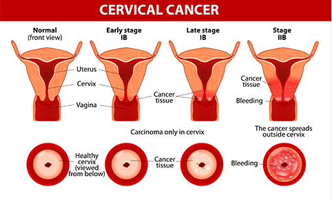 Cervical Cancer Symptoms and Treatment