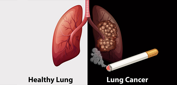 The Cause of Lung Cancer due to Smoking Cigarettes