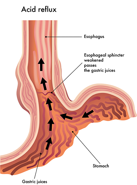 gastroesophageal reflux disease causes and treatment Reflux: introduction reflux is a generally used term that can refer to a couple of different conditions: vesicoureteral reflux or gastroesophageal reflux disease () reflux most often used in reference to gerd, a very common condition gerd results from the relaxation of the muscles around the entrance to the stomach, which allows a back flow of food, stomach acid and digestive enzymes up.