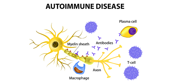 Autoimmune Disease Causes and Symptoms1
