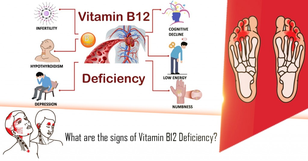 What are the signs of Vitamin B12 Deficiency?